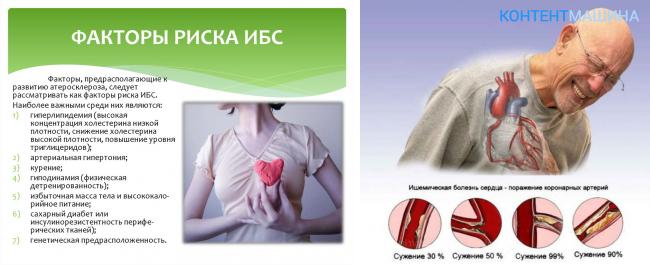 Симптомы ишемической болезни сердца у мужчин: первая помощь и методы лечения