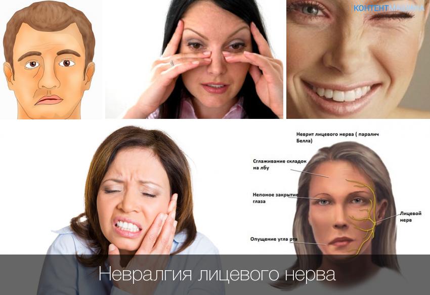 Лечение лицевого нерва в домашних условиях 283