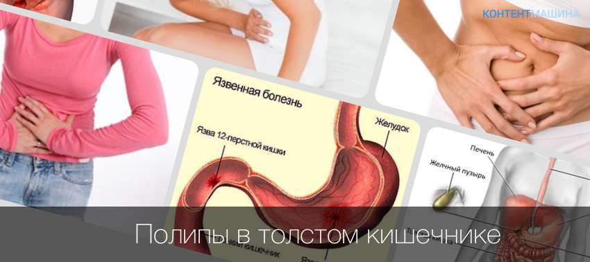 Как вылечить боли в желудке в домашних условиях 938