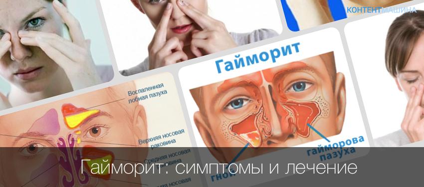 Признаки гайморита и его лечения в домашних условиях