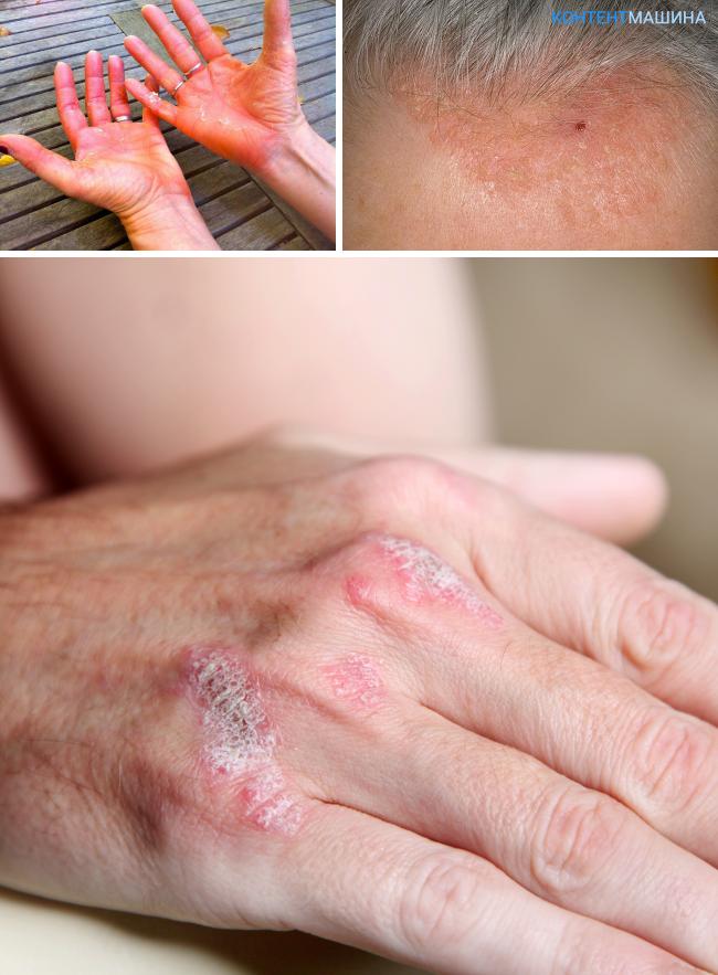 Дифференциальная диагностика псориаза начальная стадия и от чего бывает недуг?