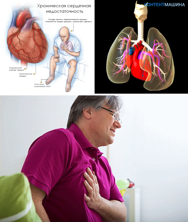 знакомства для людей с лёгочными заболеваниями