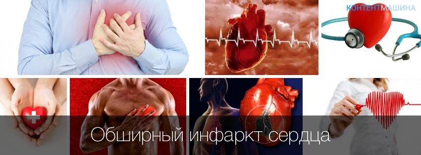 Инфаркт миокарда и сексуальные проявления это