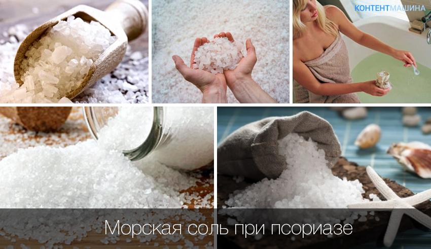 Солевые ванны пр псориазе фото
