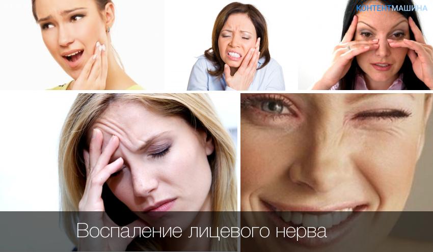 Лечение лицевого нерва в домашних условиях 197