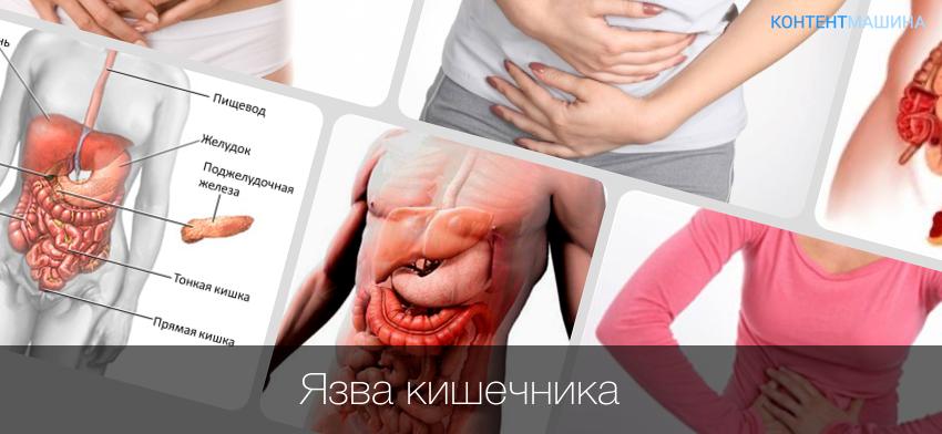Болезни кишечника список и симптомы