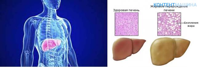 Лекарства при жировом гепатозе от алкоголизма псевдология и алкоголизма