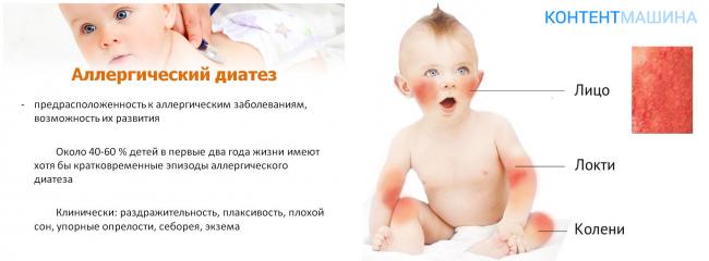 324Диатез у детей как лечить