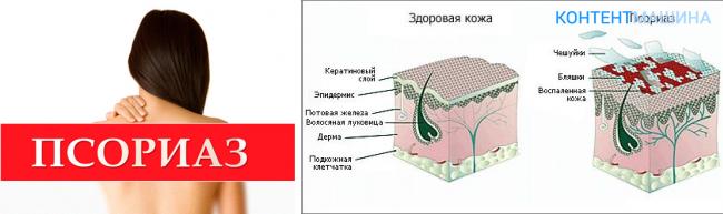 Крем Здоров От Псориаза Форум