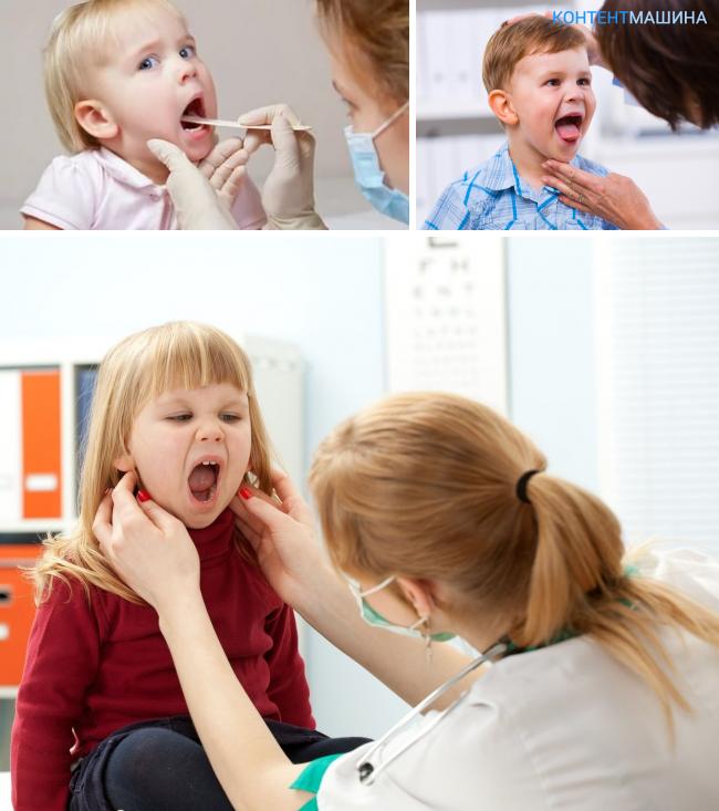 Как лечить острый герпетический стоматит у детей?