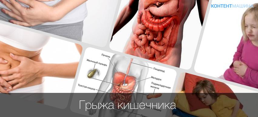 грыжа желудка как лечить народными средствами