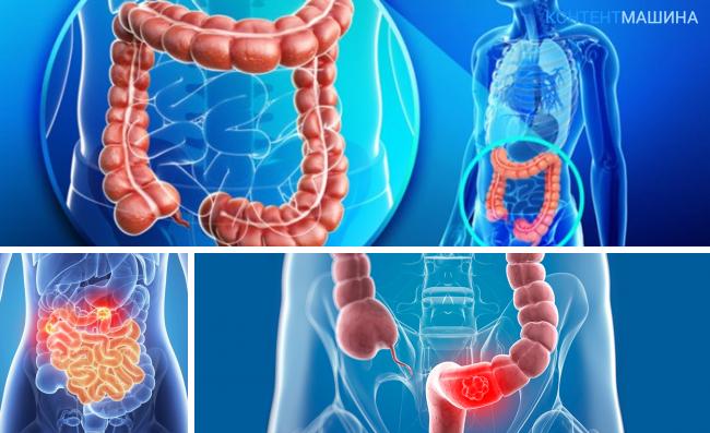 Что такое инфаркт и паралич кишечника: диагностика, лечение и последствия