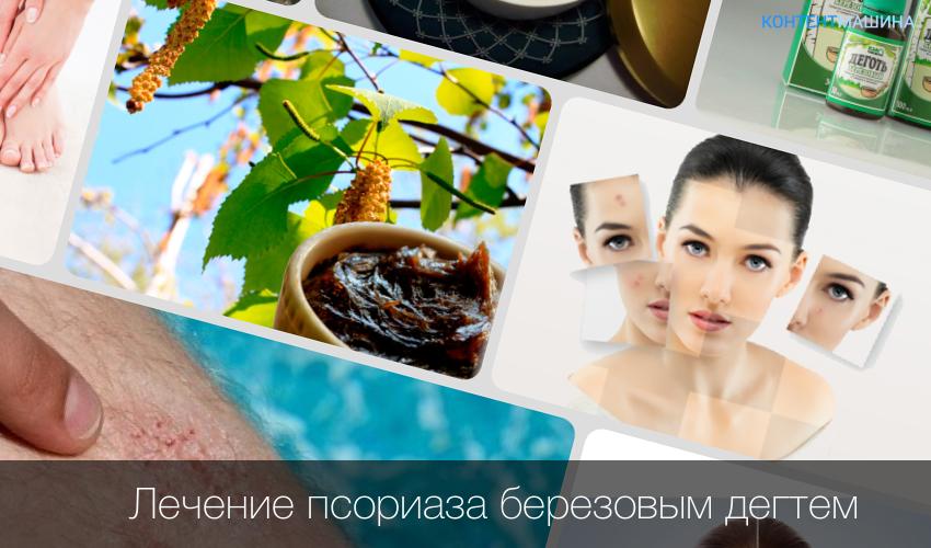Лечение Псориаза В Витебске