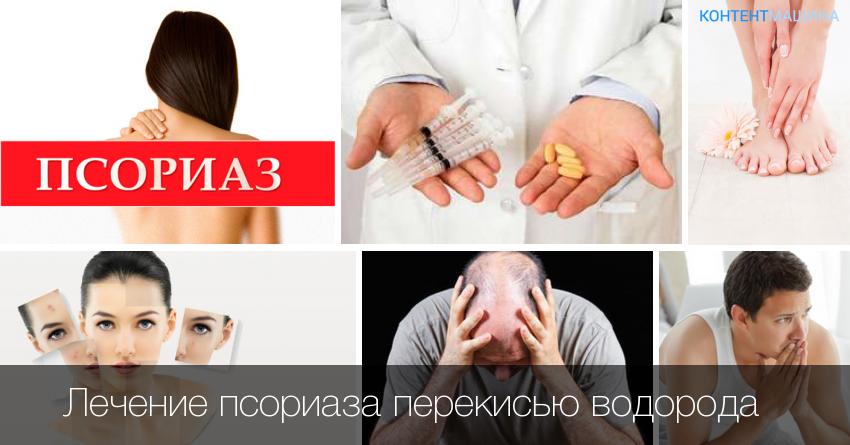 Вирус Псориаза