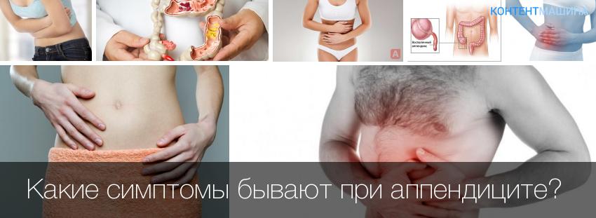 Какие признаки аппендицита у беременных 533