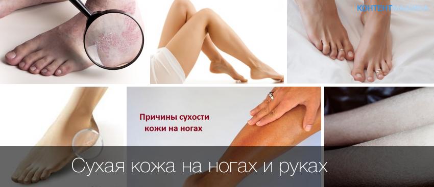 Сухая кожа лица причины и лечение
