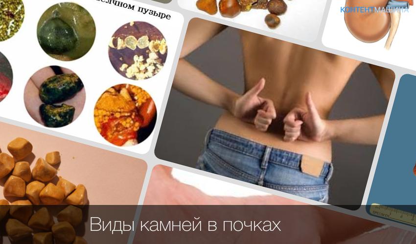 Диета при мочекаменной болезни у мужчин и женщин