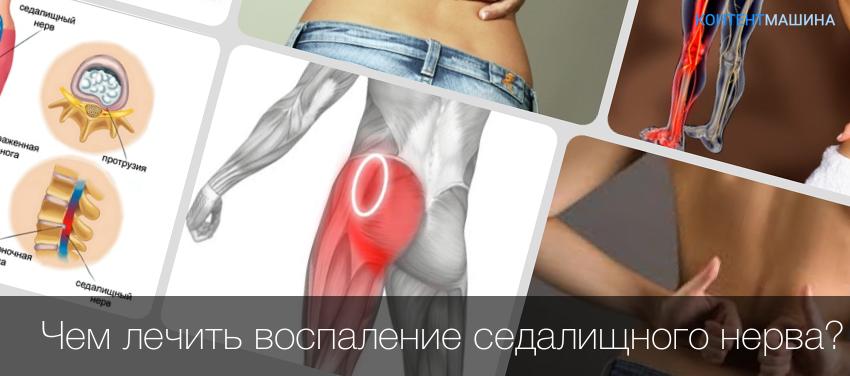 защемления нерва в плечевом суставе симптомы