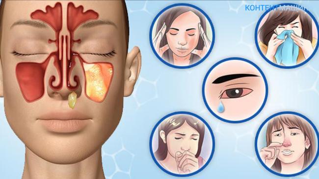 Почему после промывания носа болит голова