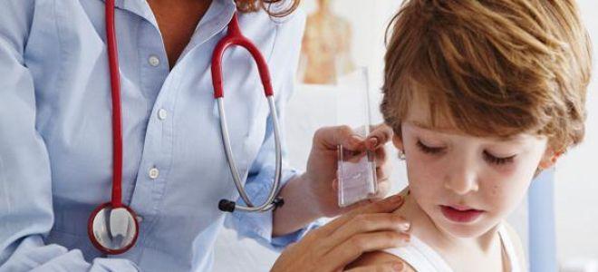 Системный мастоцитоз у детей и как его правильно лечить ?
