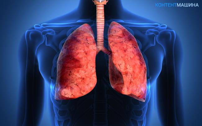 Лечение прикорневого фиброза легких народными средствами