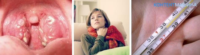 Как беременным лечить гнойную ангину 60
