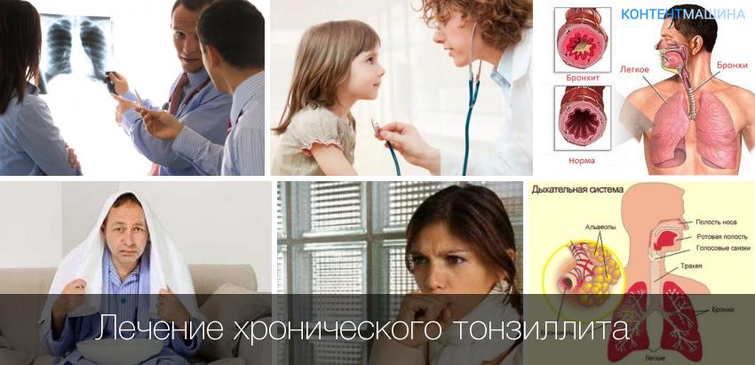 Лечение хронического тонзиллит a в домашних условиях 335
