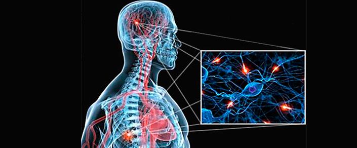 Рассеянный энцефаломиелит и основные симптомы