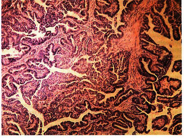 Классификация и прогнозы злокачественных опухолей