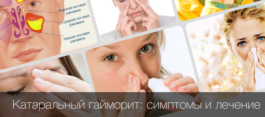 Чем лечить синусита в домашних условиях у взрослых