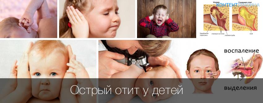 Лечение среднего отита у детей в домашних условиях 457