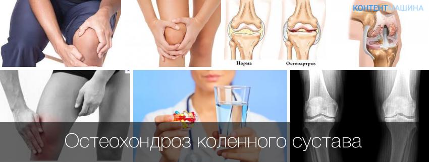 Как и чем лечить остеохондроз коленного сустава