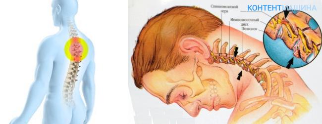Остеохондроз с корешковым синдромом википедия