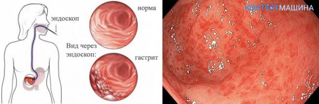 Поверхностный гастрит: первые симптомы и методы лечения