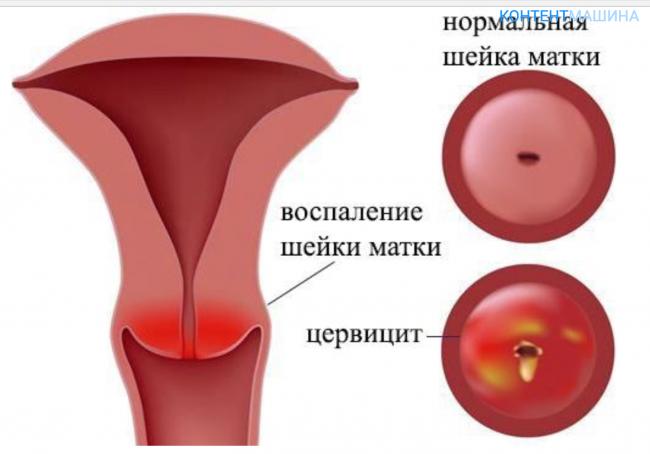 Воспаление цервикального канала и вертебральная цервикалгия: симптомы и лечение