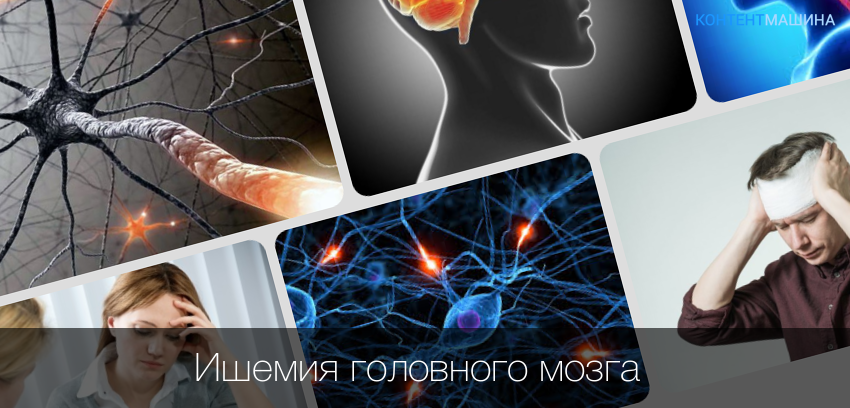 Диагностика ишемии головного мозга