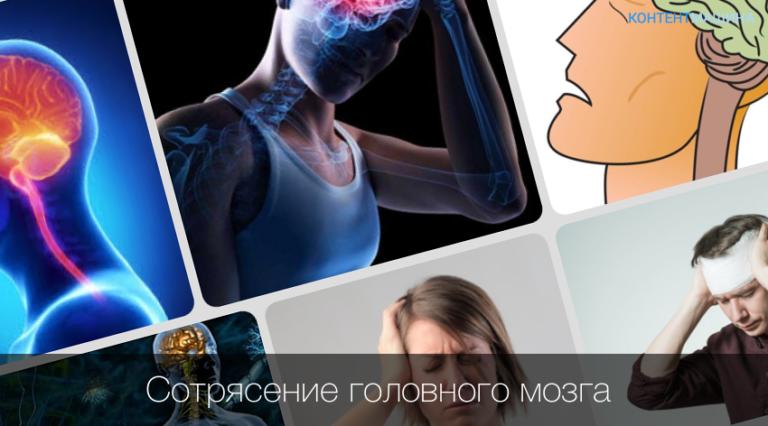 Как лечить сотрясение мозга лекарствами
