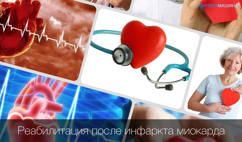Реабилитация после инфаркта миокарда в домашних условиях